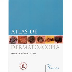 Atlas Dermatoscopia