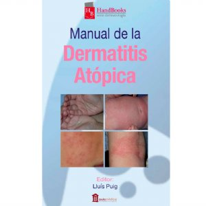 Manual Dermatitis
